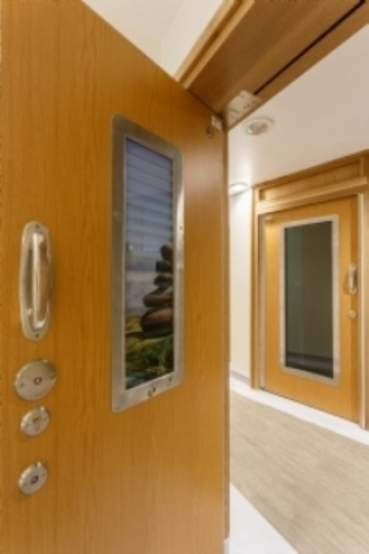 Duralux privacy vision panel in door